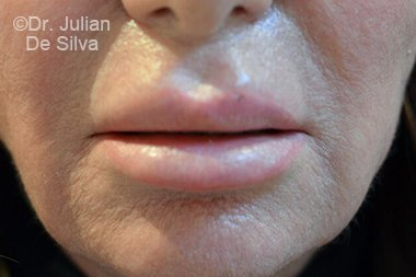 Lip Augmentation & Reduction Before 3