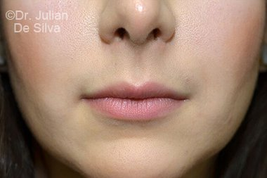 Lip Augmentation & Reduction Before 11