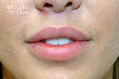 Lip Augmentation & Reduction After 10