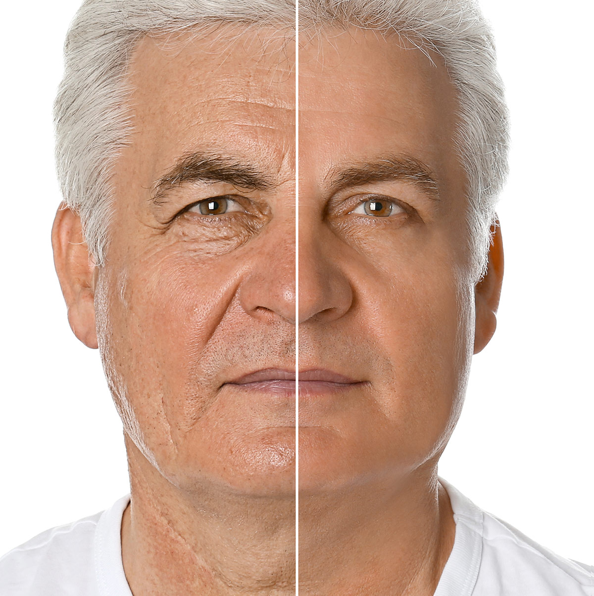 Male face, Before and After Lower Blepharoplasty Surgery, eyelids, front view