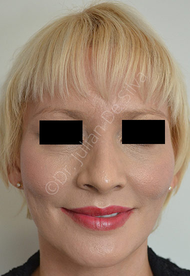 Nose Re-Shaping After 1