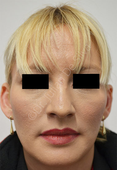 Nose Re-Shaping Before 1