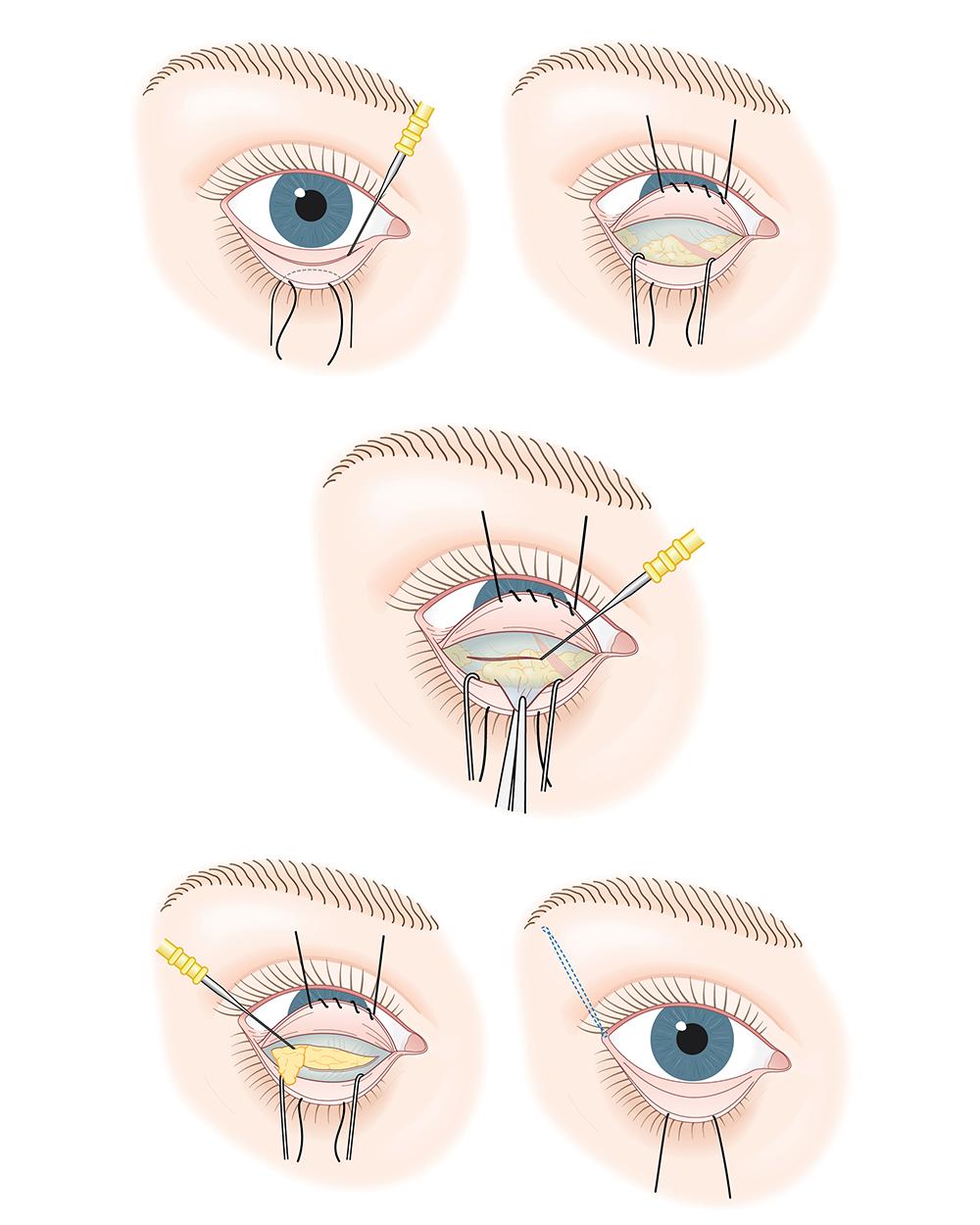 Lower Eyelid (Blepharoplasty) Technique