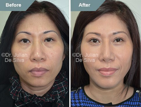 Asian woman face, before and after Asian rhinoplasty treatment, front view, patient 2