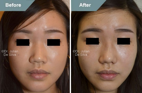 Asian woman face, before and after Asian rhinoplasty treatment, front view, patient 3