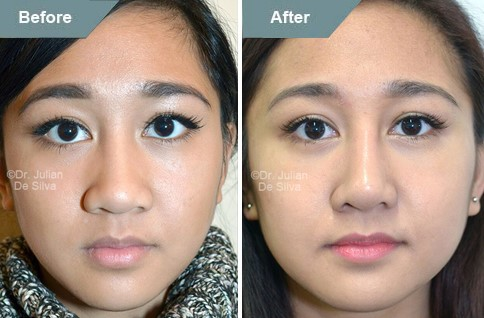 Asian woman face, before and after Asian rhinoplasty treatment, front view, patient 4