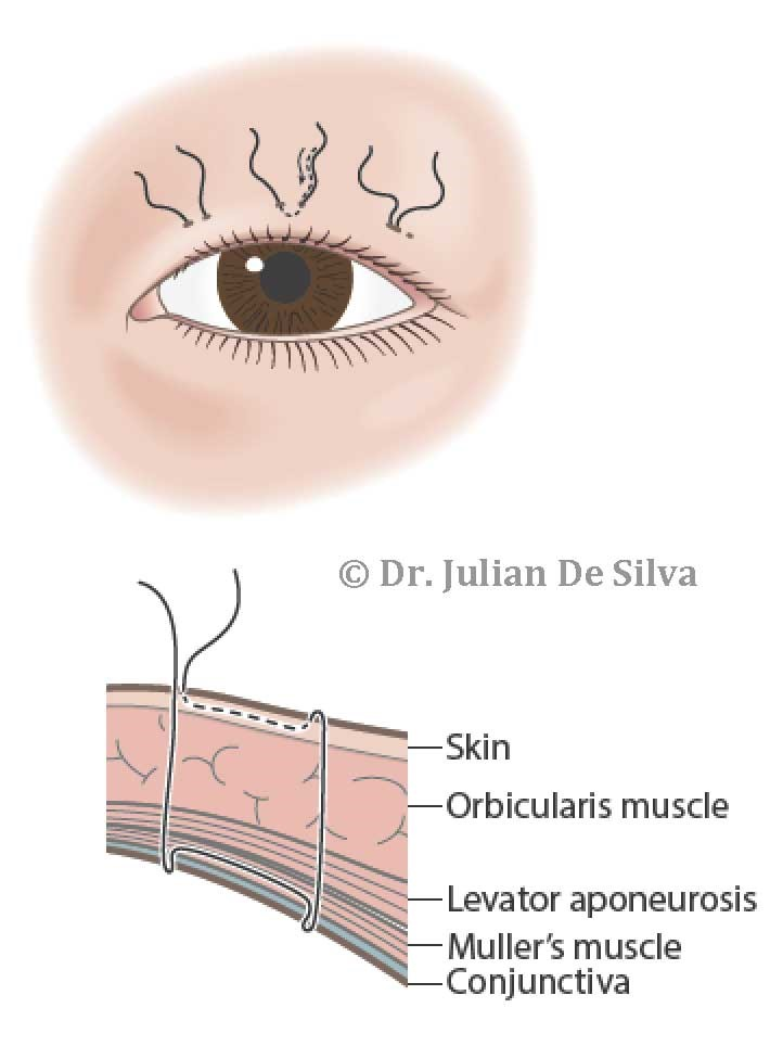 The Partial-incision Method - eyelid schema: Skin, Orbicularis muscle, Levator Aponeurosis, Muller's muscle, Conjunctiva