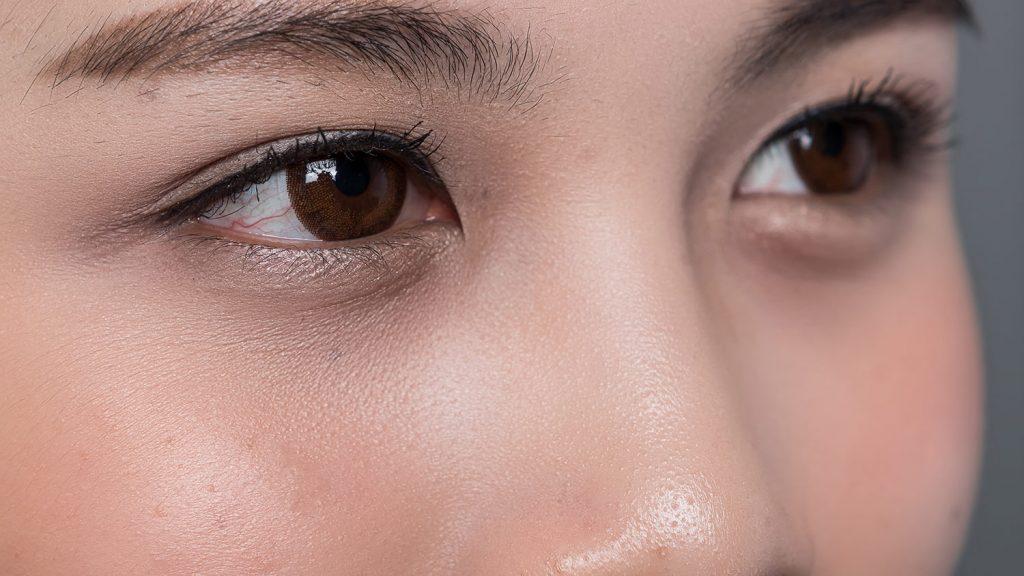 Woman's face, Asian eyelid surgery photo, oblique view