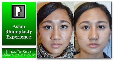 Watch Video: Patient Experience of Asian Rhinoplasty & Septoplasty