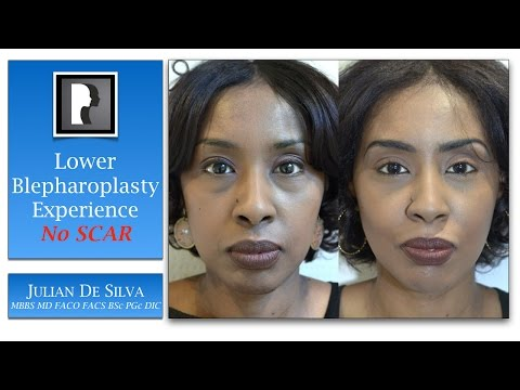 Watch Video: About blepharoplasty surgery eyelid lift, video 1