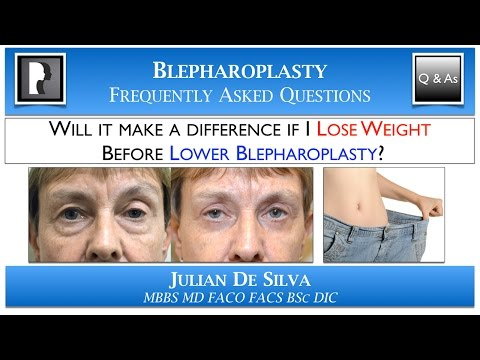 Watch Video: About blepharoplasty surgery eyelid lift, video 3