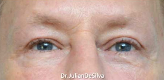 Male eyes, After Blepharoplasty Treatment, front view, patient 1