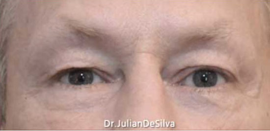 Male eyes, Before Blepharoplasty Treatment, front view, patient 1