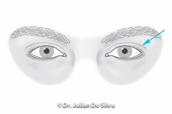 Area around eyes: Male Blepharoplasty (before treatment)