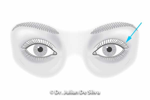 Area around eyes: Male Blepharoplasty (after treatment)
