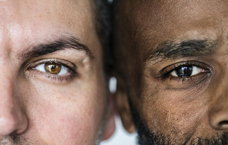 Male faces - Blepharoplasty