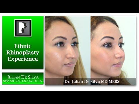 Watch Video: Rhinoplasty & Septoplasty Video Testimonial