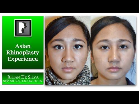 Watch Video: Rhinoplasty and Septoplasty Video Testimonial