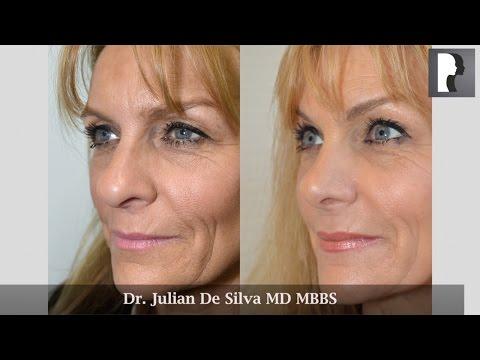 Watch Video: Rhinoplasty Review & Testimonial by Dr. Julian De Silva