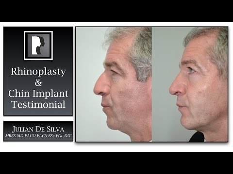 Watch Video: Rhinoplasty & Chin Implant Review & Testimonial