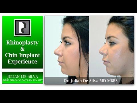 Watch Video: Rhinoplasty & Chin Implant Video Testimonial