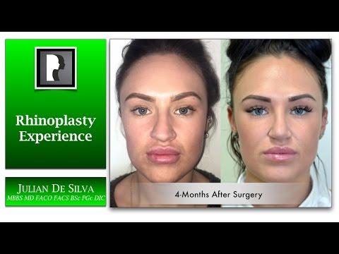 Watch Video: Rhinoplasty & Septoplasty Video Testimonial with Dr. Julian De Silva