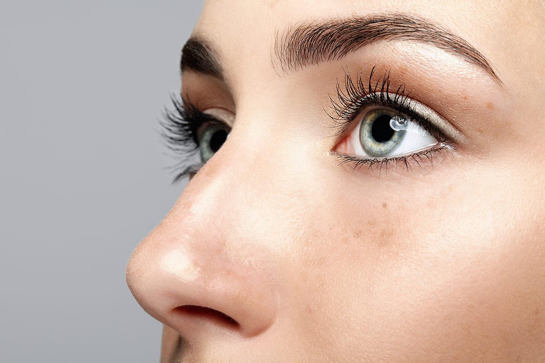 Woman's face, after Revision Facelift, oblique view