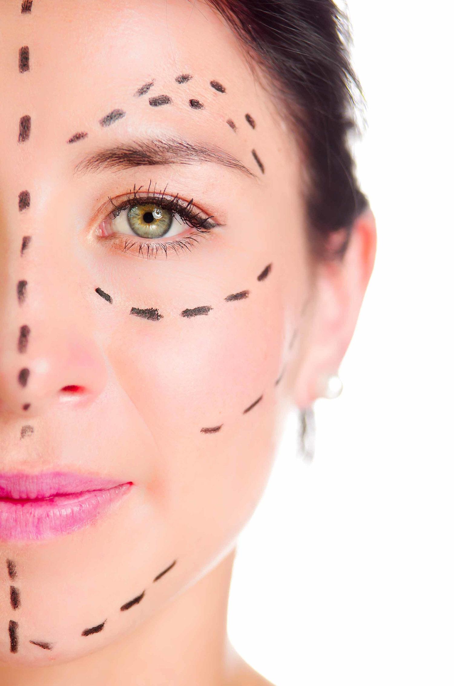 Woman's face, scheme surgery lines, before Revision Facelift, front view