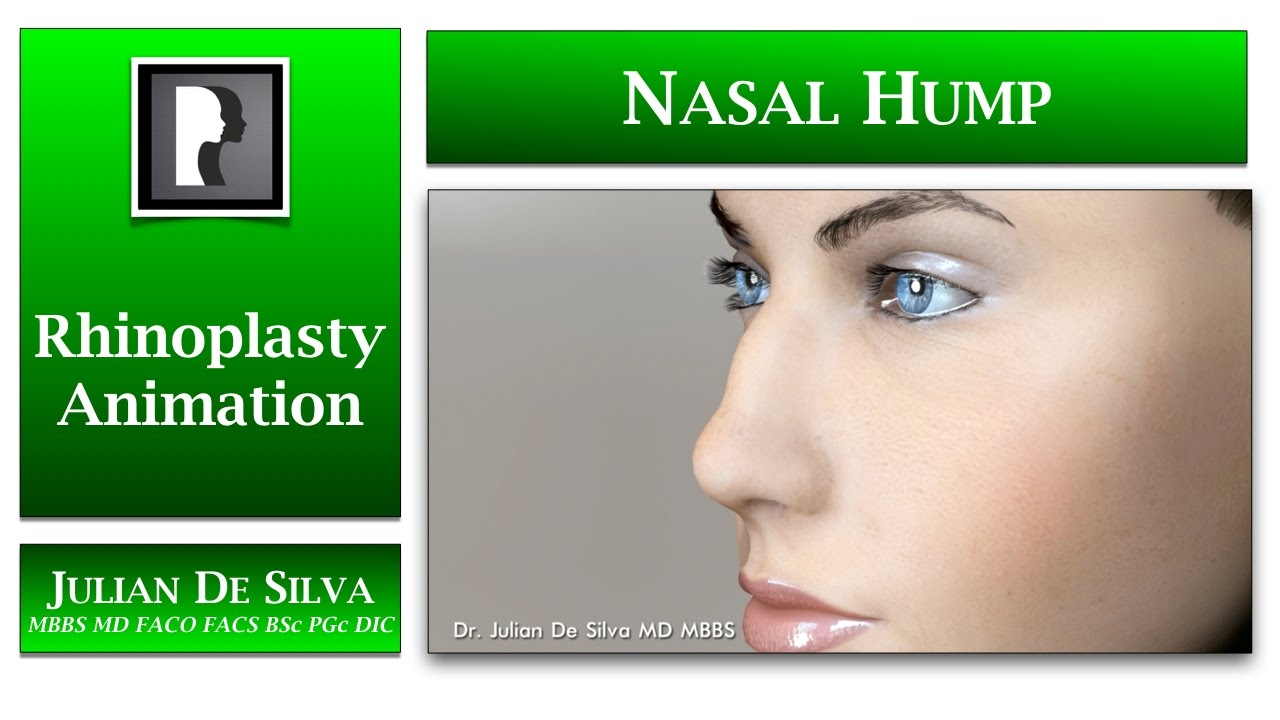Watch Video: Rhinoplasty animation - How can a Nasal Hump be reduced?