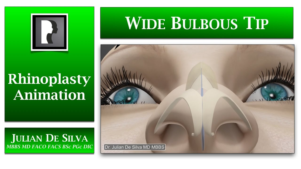 Watch Video: Rhinoplasty animation - How can a Large and Wide Bulbous Tip be made smaller?