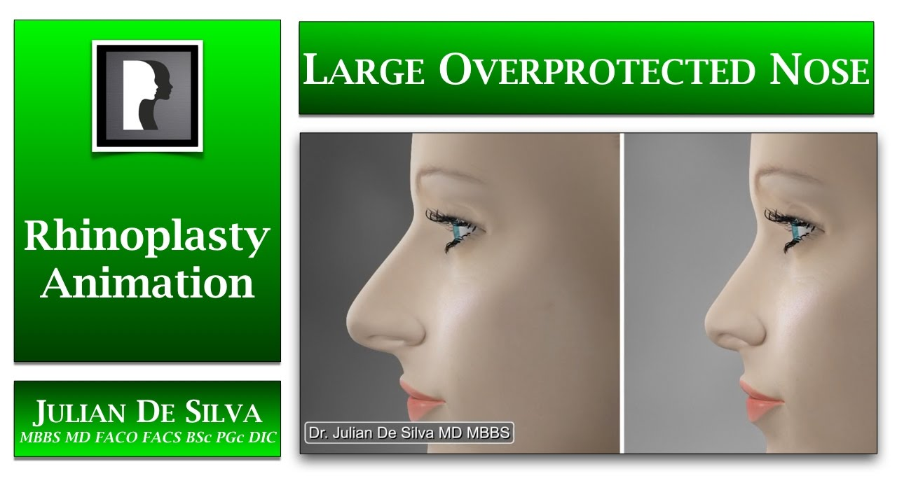 Watch Video: Rhinoplasty Animation - How can a Large Over-Projected nose be made SMALLER?