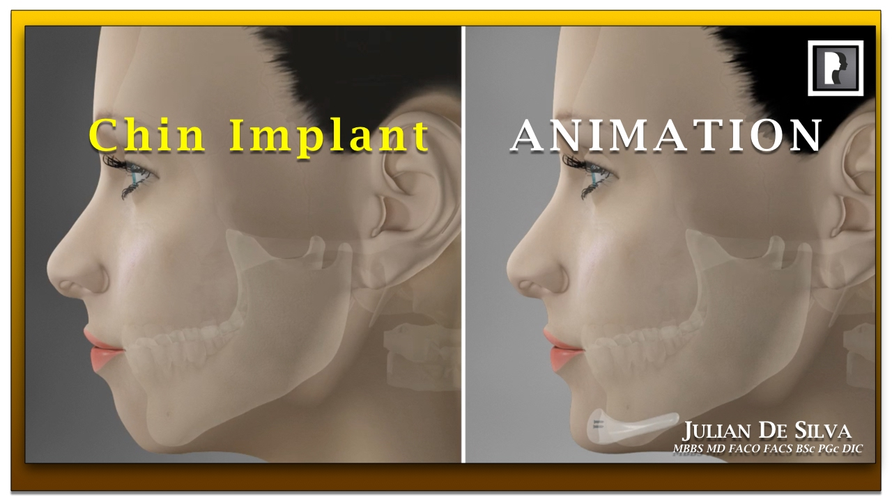 Rhinoplasty Technique (A.K.A. Nose job)