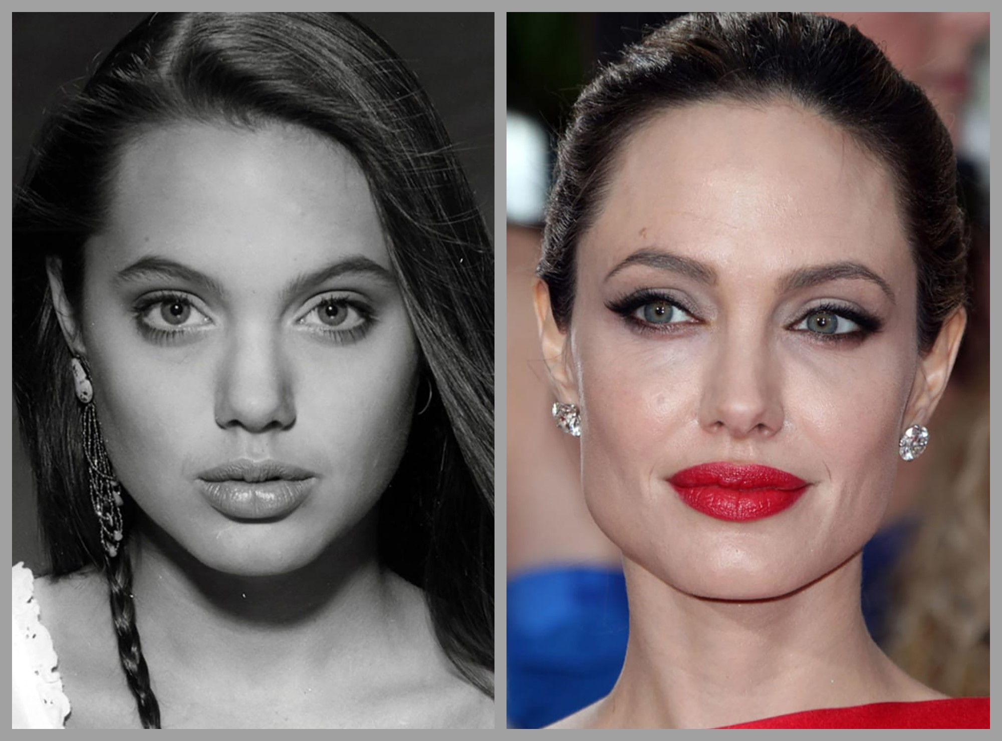 Angelina Jolie - Before and After Rhinoplasty Treatment