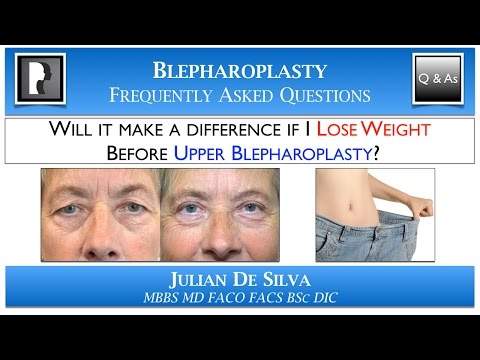 Watch Video: Will LOSING WEIGHT make a difference before Upper Blepharoplasty?