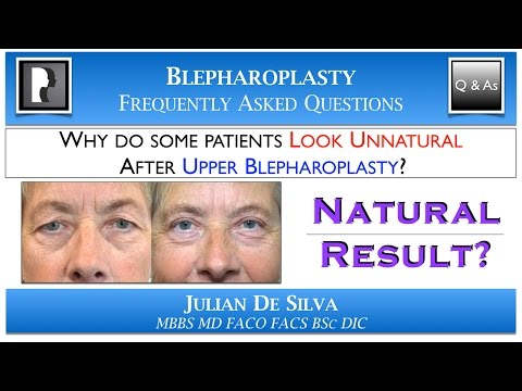 Upper Eyelid (Blepharoplasty) Surgery Step-By-Step
