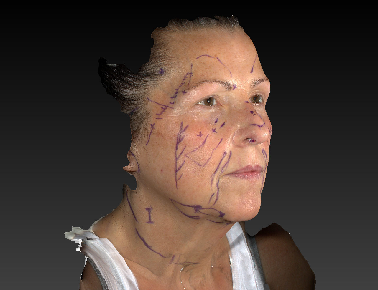 3D Photo. Woman's face, Markings PreOp SanDal