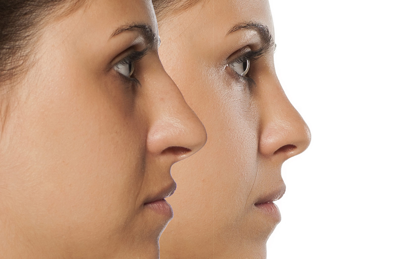 Woman's face, Before and After Rhinoplasty Treatment, nose, side view