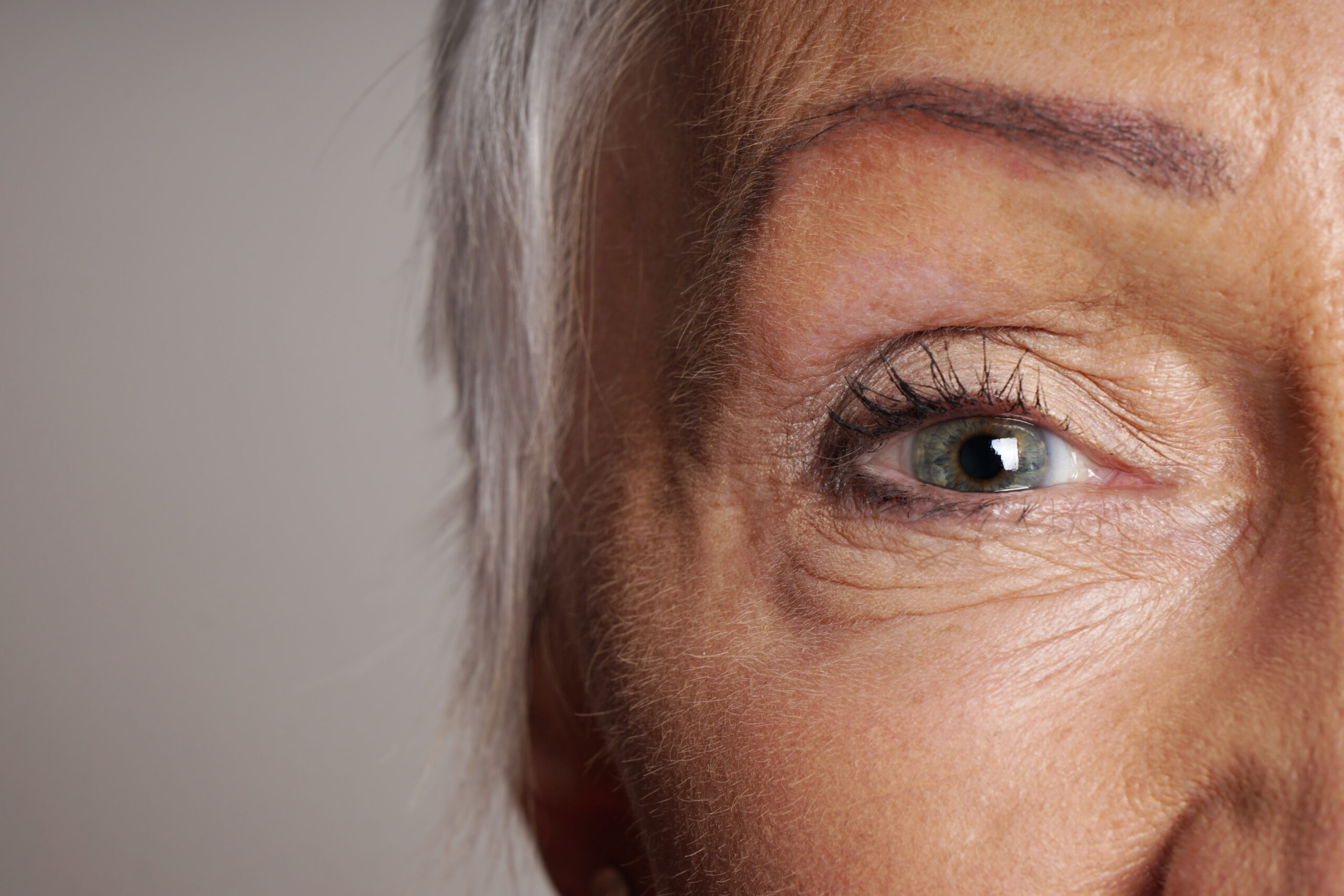 Facial aging: wrinkles around eye, female face