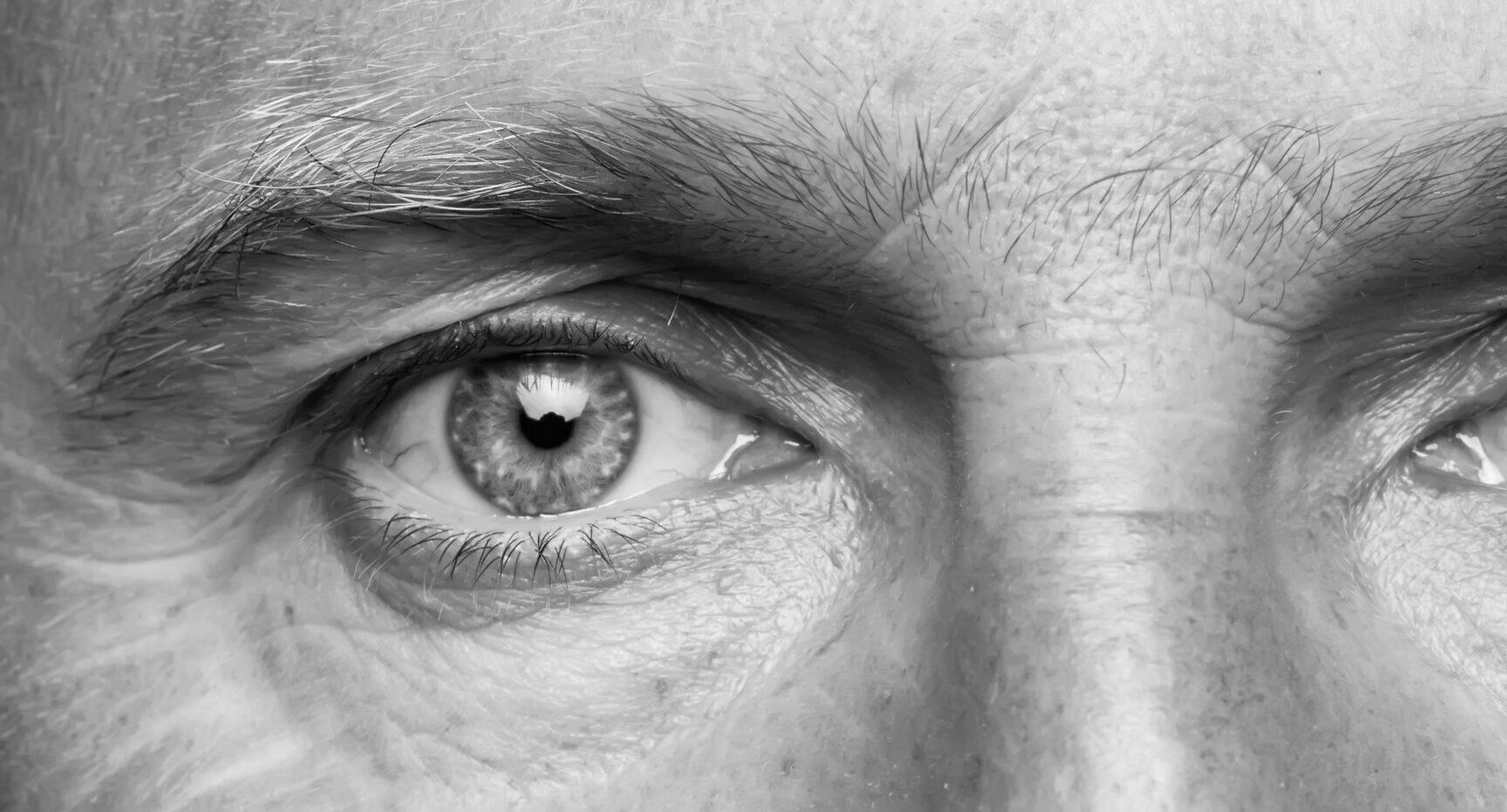 Male face. Blepharoplasty