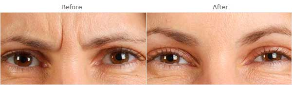 Facial aging: Glabellar wrinkles, before and after treatment, front view, patient 2