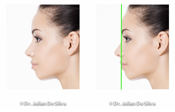 Woman's face, before and after Chin Implant treatment, female patient, left side view