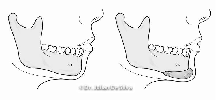 Anatomy: Chin Implants