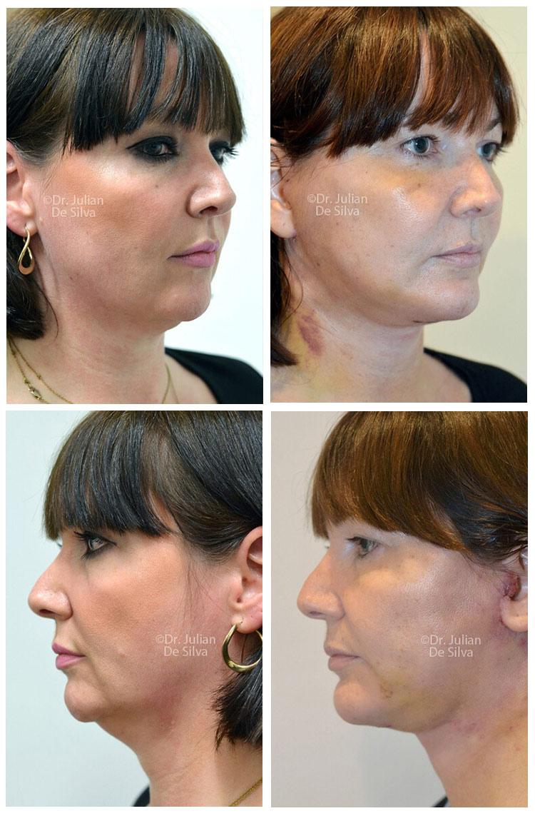 Facelift (Rhytidectomy)