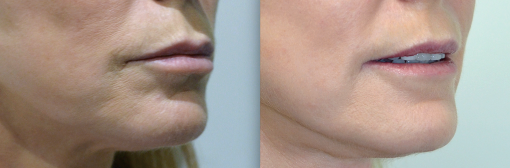 Woman's face: Before and after Laser Resurfacing Treatment - chin, oblique view