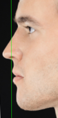 Male face, Lip Reduction (Cheiloplasty) - left side view