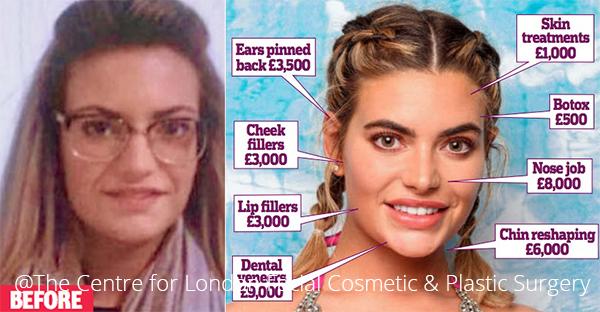 Megan Barton (treatment procedures with face)