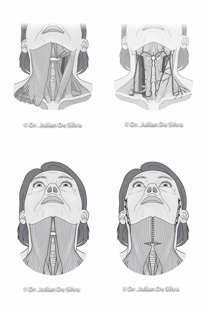 Woman's neck (Necklift diagrams)
