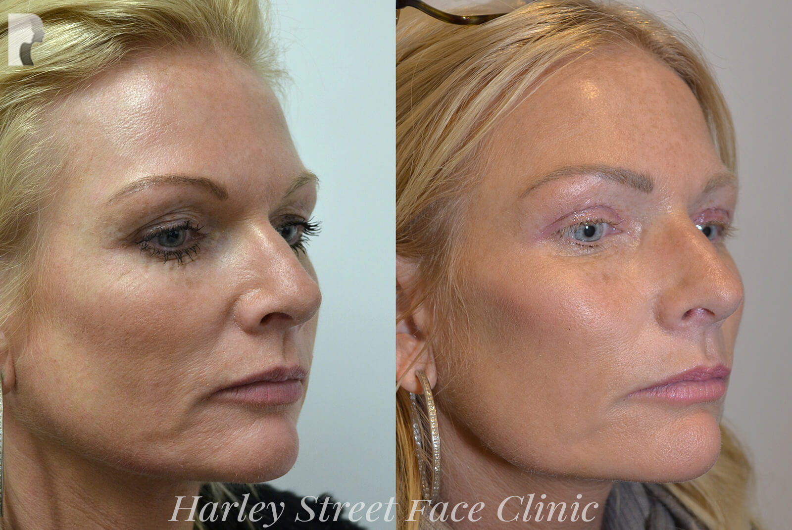 Minimally invasive or non-invasive procedures - female face, before and after treatment