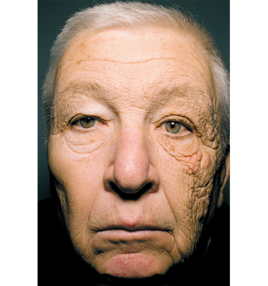 Skin Protection: Basic skincare - Cleansing, Toning, Moisturizing, Protecting (Photo: Truck Drivers Face)