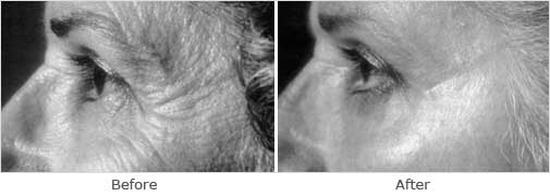 Retinoic: Alpha-lipoic acid (ALA) - before and after photos